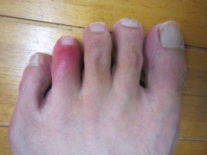 足の指を打撲してしまいました!の詳細へ