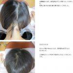 円形脱毛症の症例 NO.2の詳細へ