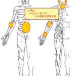 Bスポット療法を何度もやったが軽減しない慢性上咽頭炎に鍼灸施術を!の詳細へ