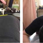 鍼だけでも体の歪みが回復しますの詳細へ
